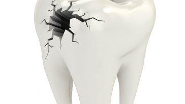rottura denti