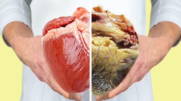 grasso viscerale vs normalità